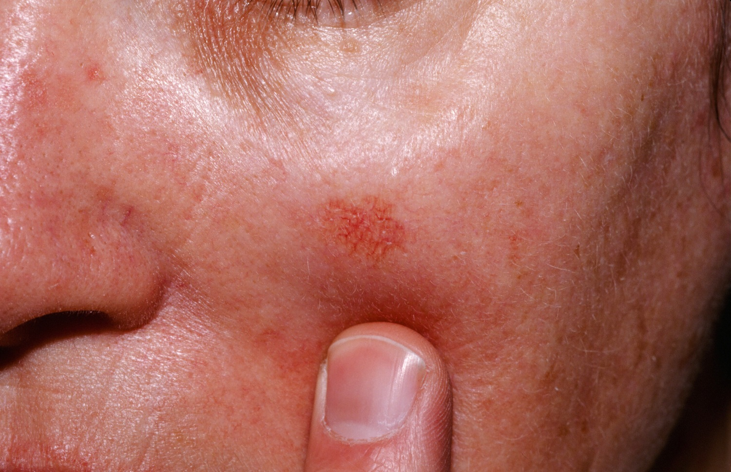 dry patches on upper lip - Dermatology - MedHelp